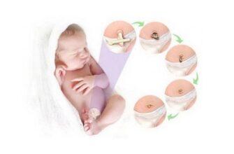 Уход за пупочной ранкой новорожденных